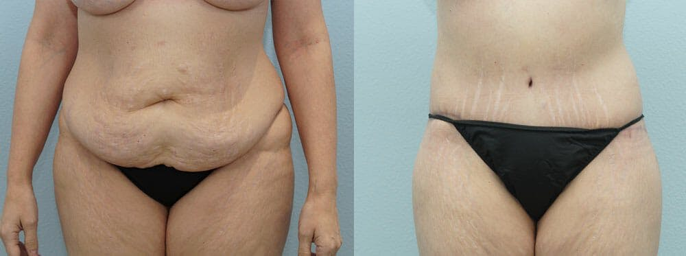 Body Lift Gallery - Patient 49632157 - Image 1