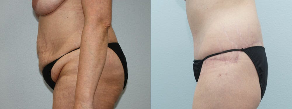 Body Lift Gallery - Patient 49632157 - Image 3