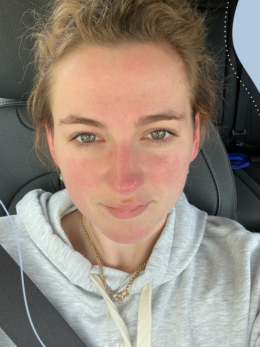 Megan's rosacea journey: the highs, lows and hero products