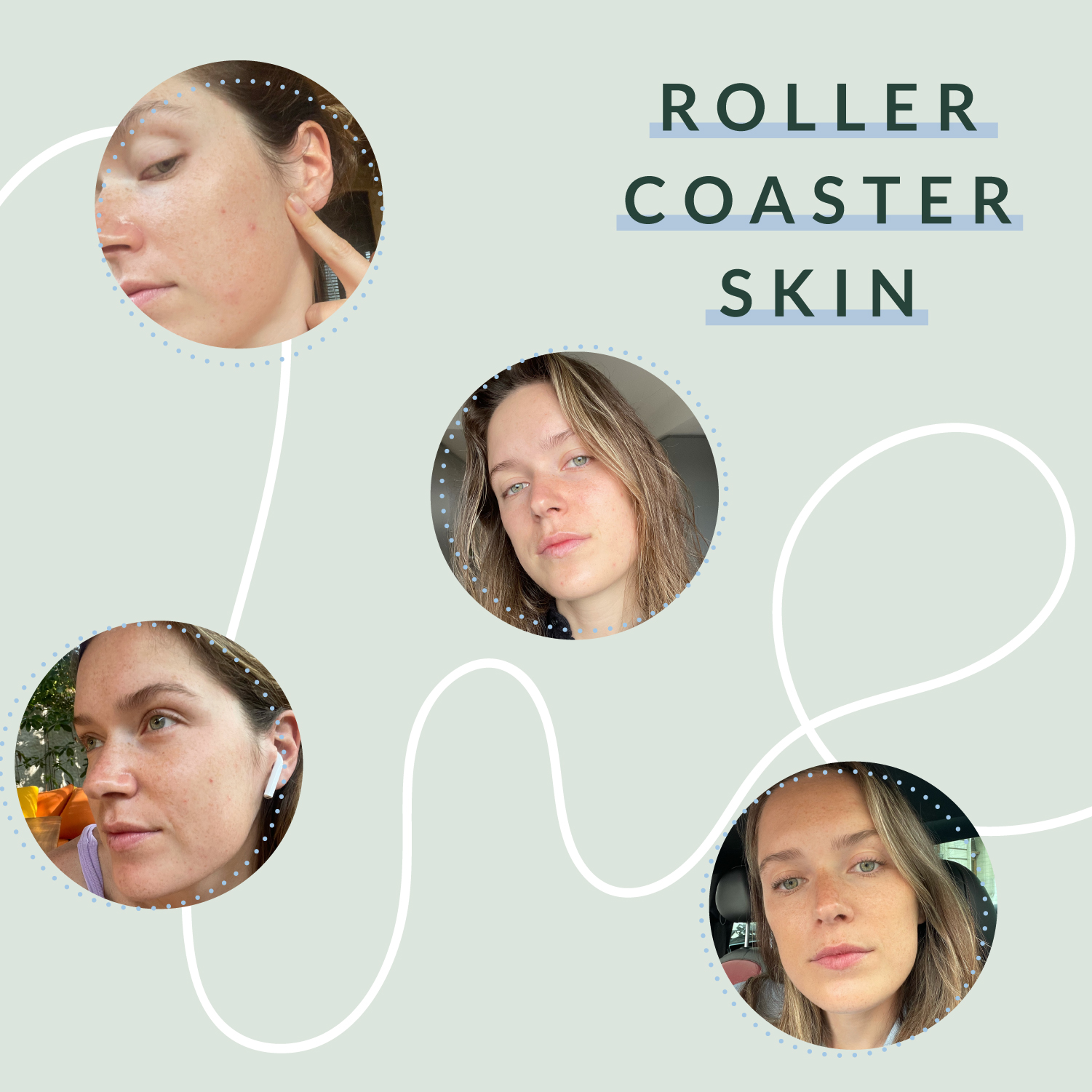 What exactly is rollercoaster skin?