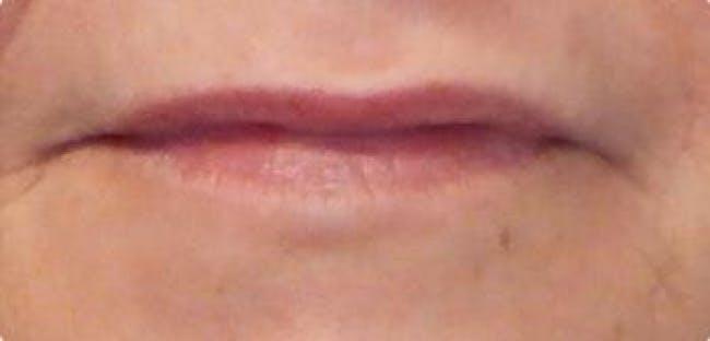 Lip Filler Gallery - Patient 46620250 - Image 1
