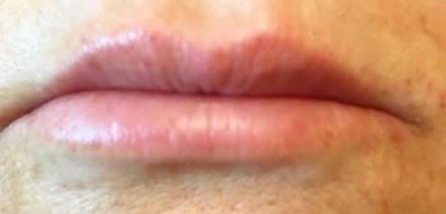 Lip Filler Gallery - Patient 46620336 - Image 2