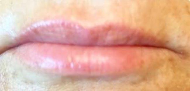 Lip Filler Gallery - Patient 46620336 - Image 1