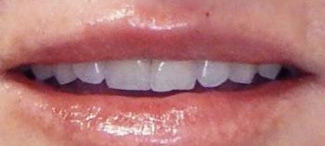 Lip Filler Gallery - Patient 46620389 - Image 2