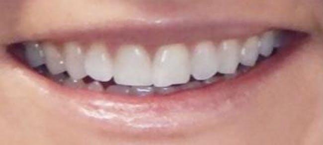 Lip Filler Gallery - Patient 46620389 - Image 1