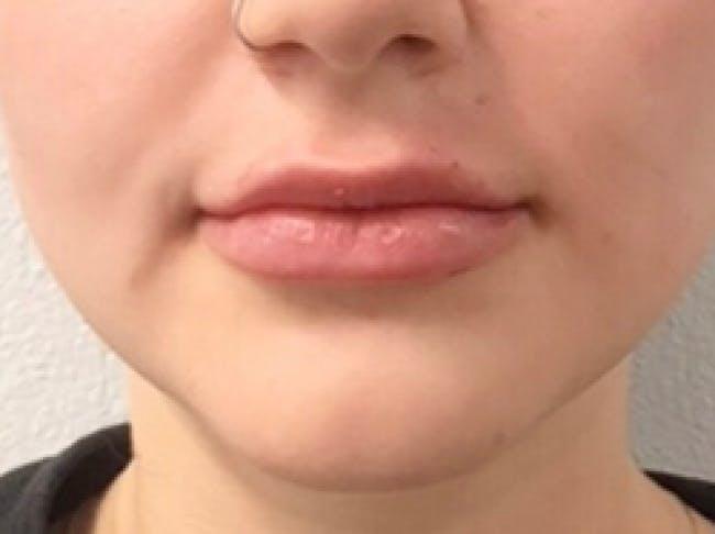 Lip Filler Gallery - Patient 46620452 - Image 2
