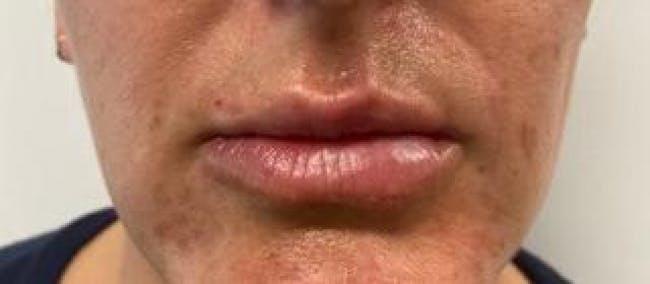 Lip Filler Gallery - Patient 46620491 - Image 2
