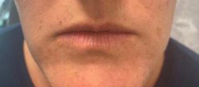 Lip Filler Gallery - Patient 46620491 - Image 1