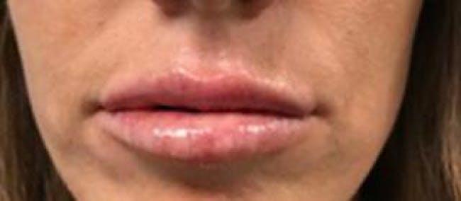 Lip Filler Gallery - Patient 46620571 - Image 2