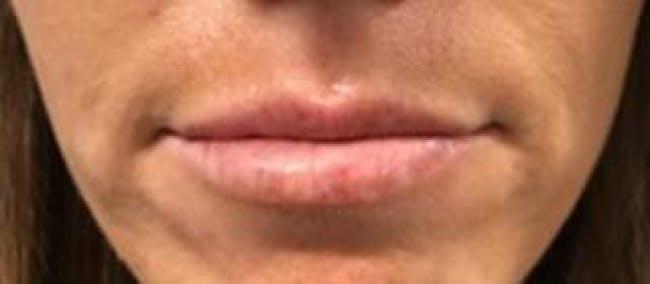 Lip Filler Gallery - Patient 46620571 - Image 1