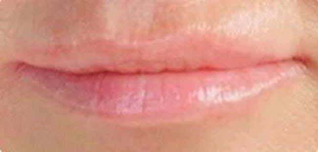 Lip Filler Gallery - Patient 46620613 - Image 2