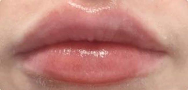 Lip Filler Gallery - Patient 46620823 - Image 2