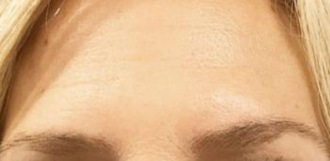 Botox Gallery - Patient 46619650 - Image 3