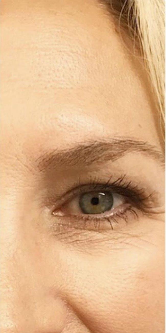 Botox Gallery - Patient 46619650 - Image 1