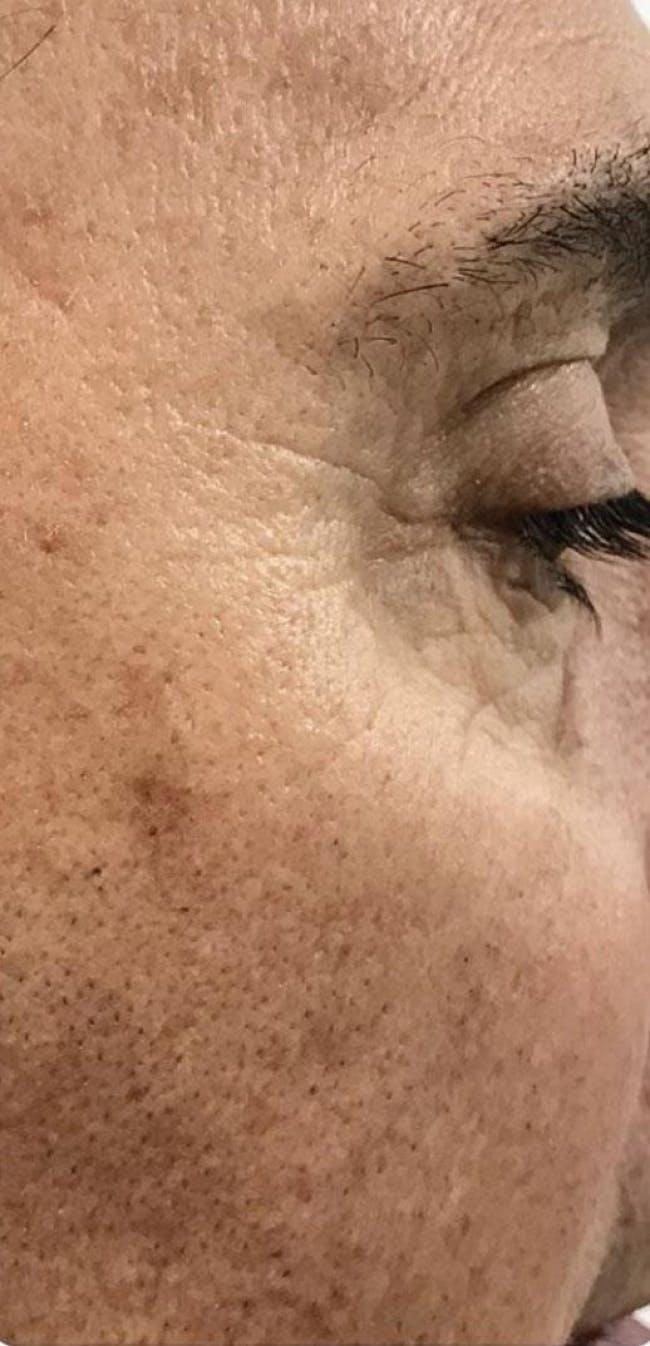 Botox Gallery - Patient 46619651 - Image 2
