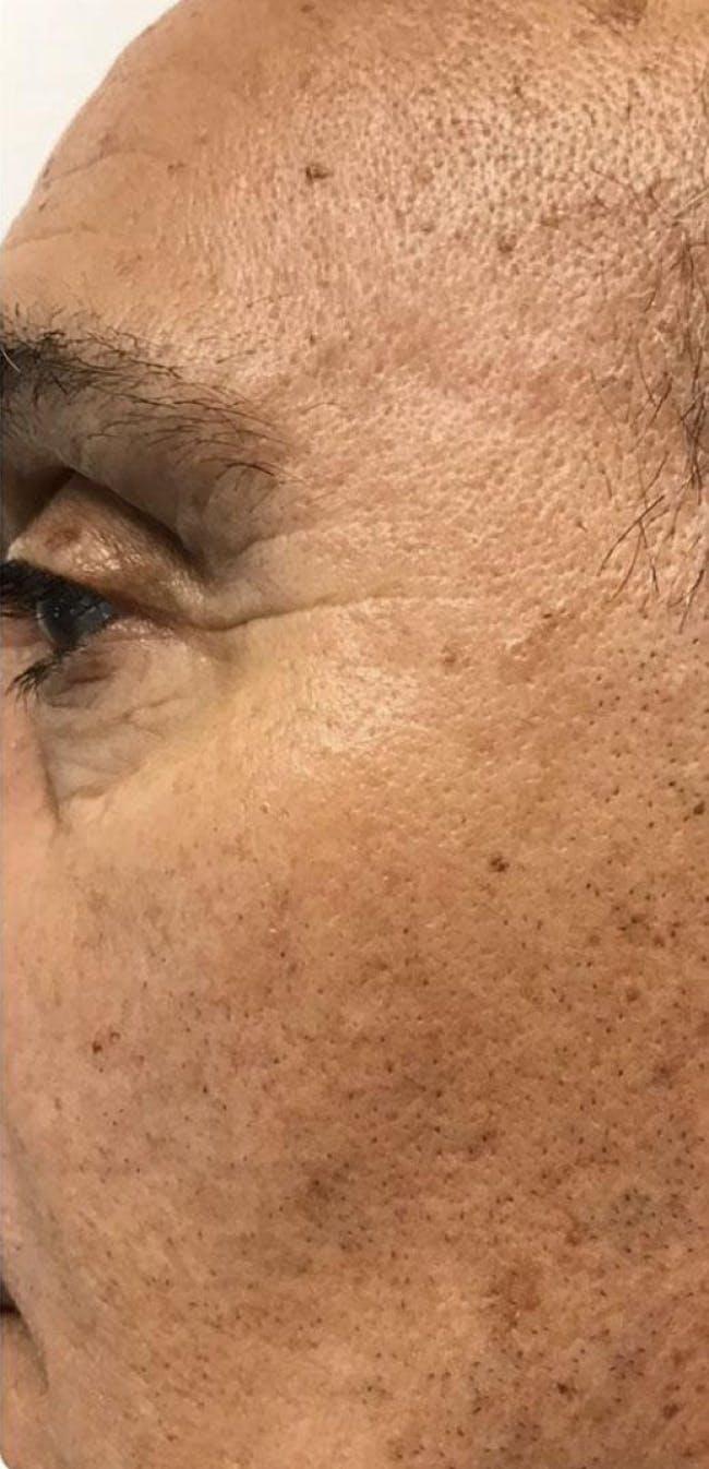 Botox Gallery - Patient 46619651 - Image 3