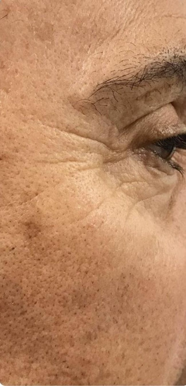 Botox Gallery - Patient 46619651 - Image 1