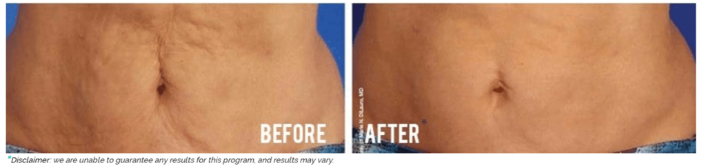 Titan Laser Before and After Newport Beach