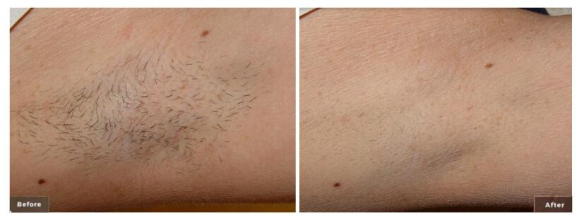 Laser Hair Removal Before & After Rancho Santa Margarita & Newport Beach