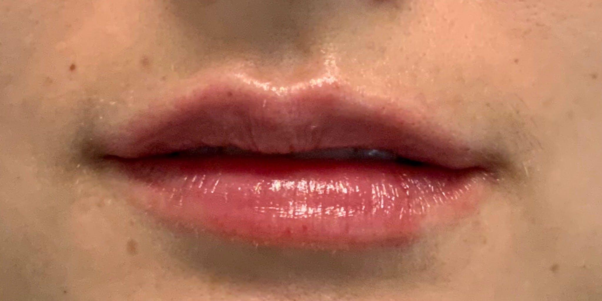 Lip Filler Gallery - Patient 54031019 - Image 2