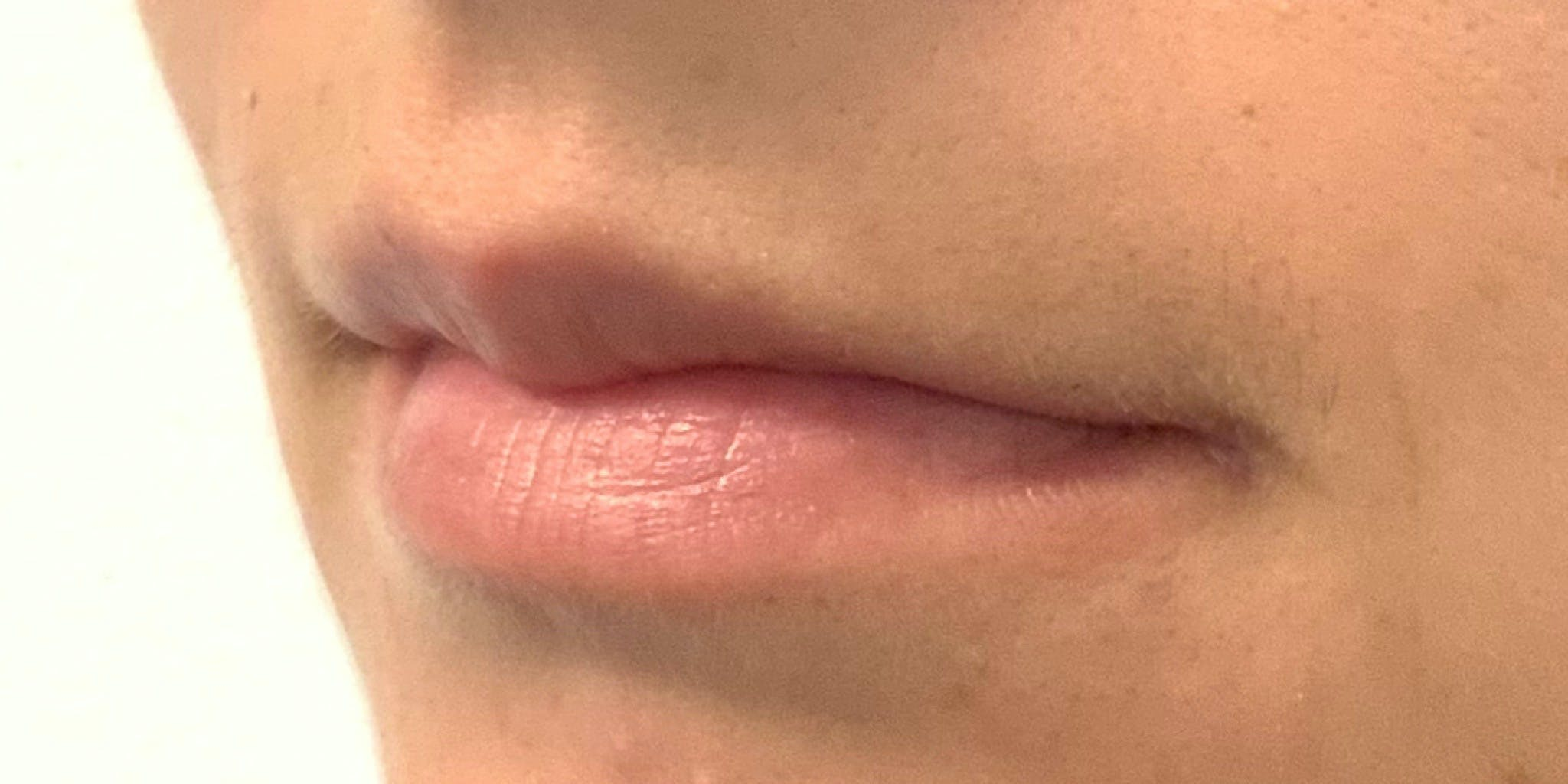 Lip Filler Gallery - Patient 54031019 - Image 5