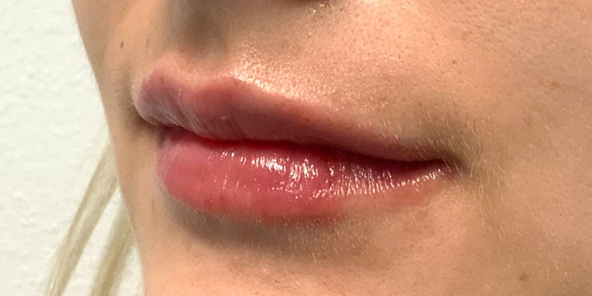 Lip Filler Gallery - Patient 54031019 - Image 6