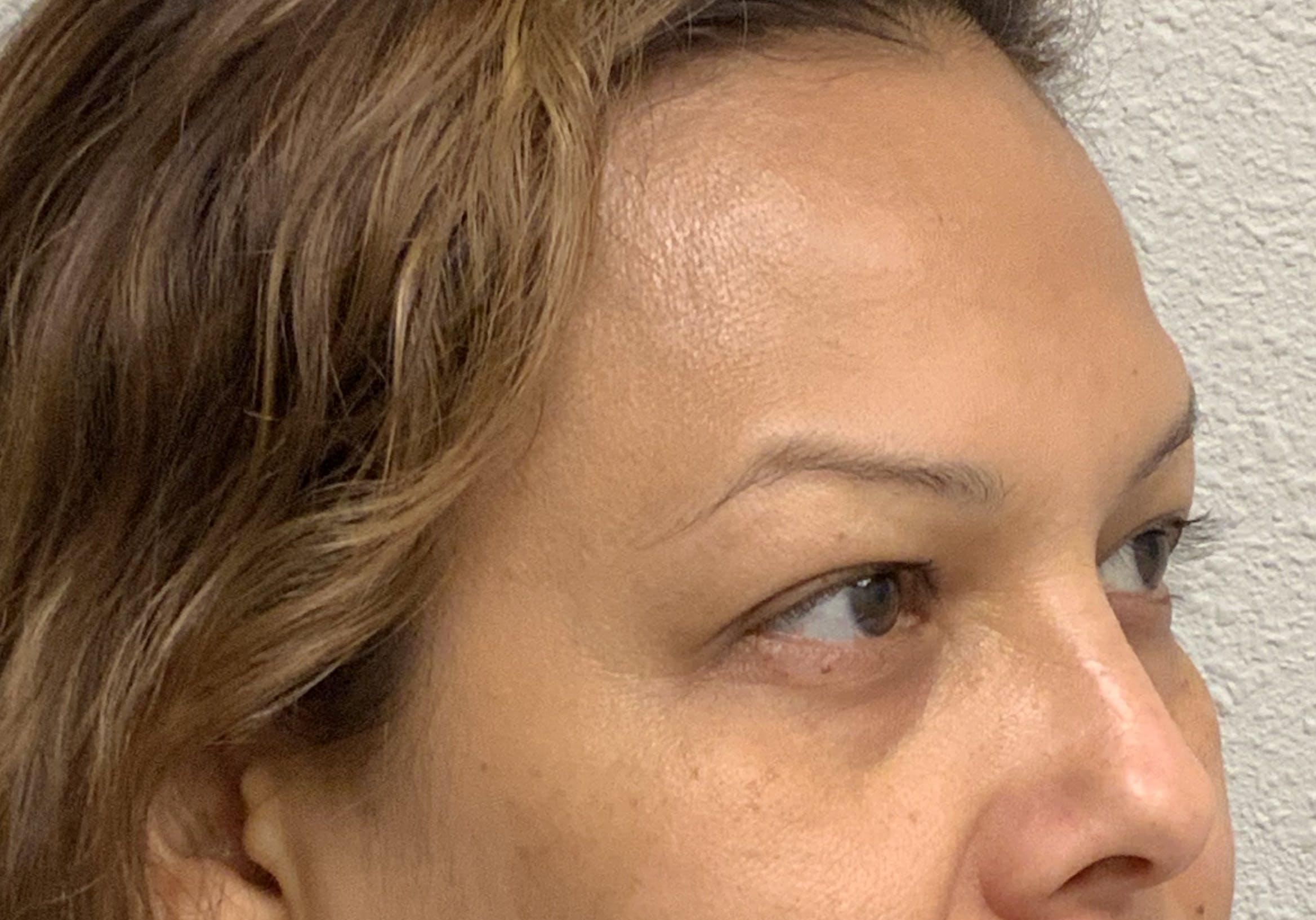 Botox Gallery - Patient 54692399 - Image 1