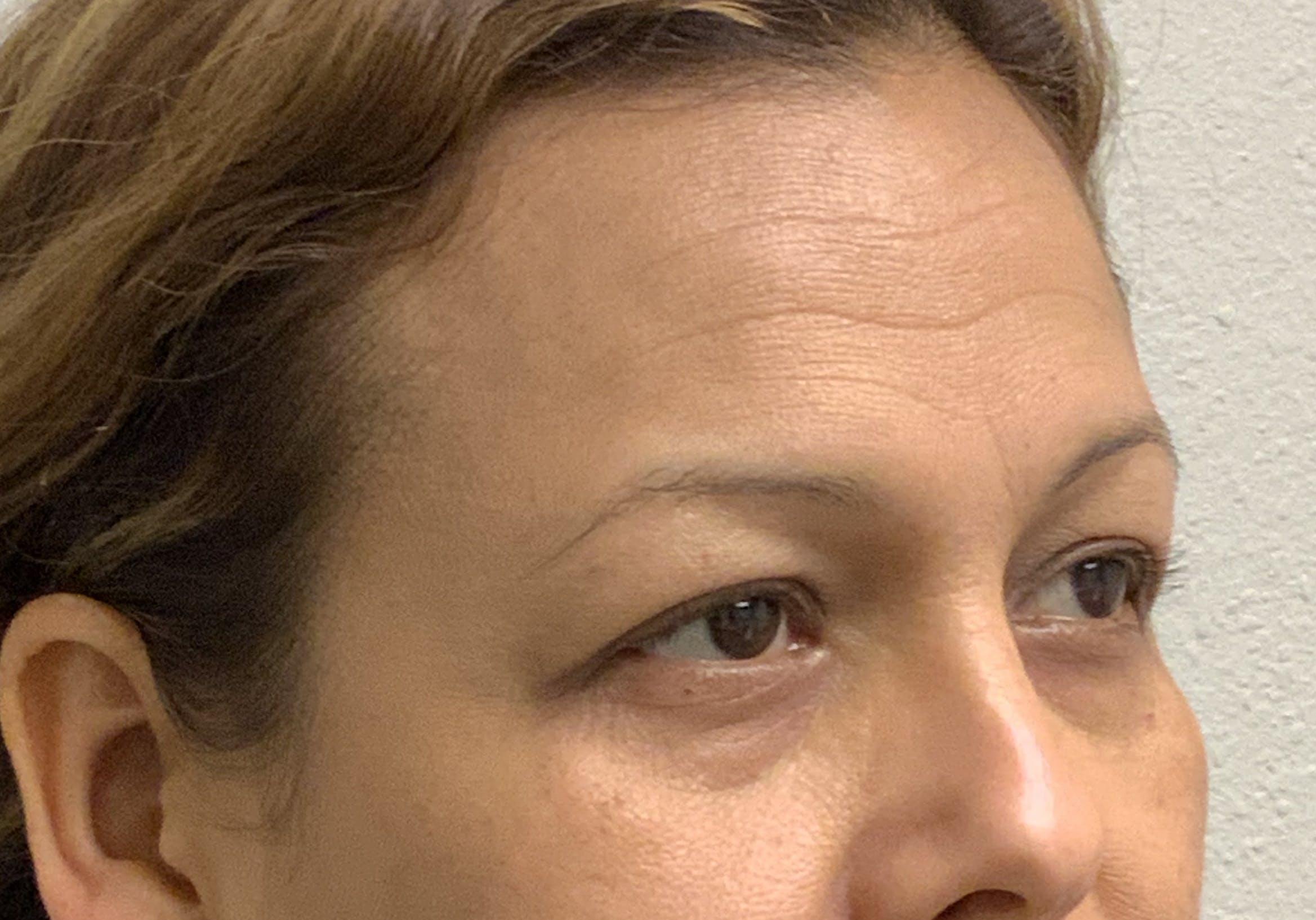 Botox Gallery - Patient 54692399 - Image 2