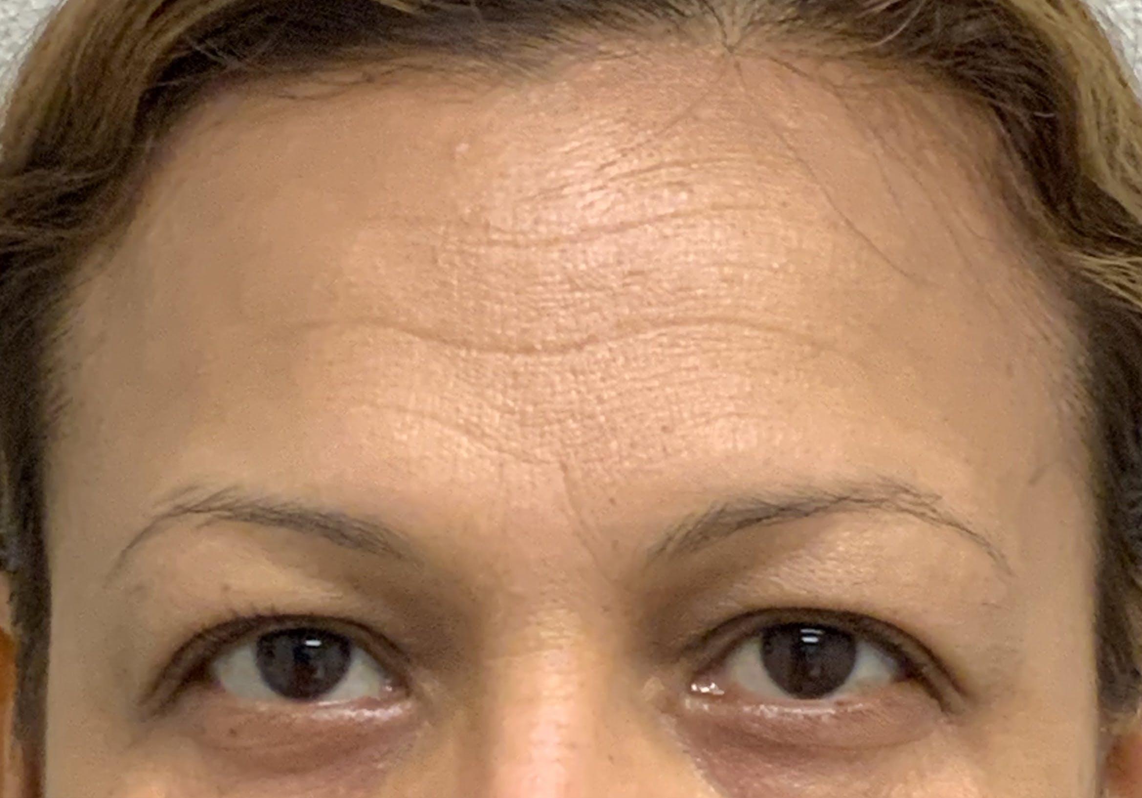 Botox Gallery - Patient 54692399 - Image 4