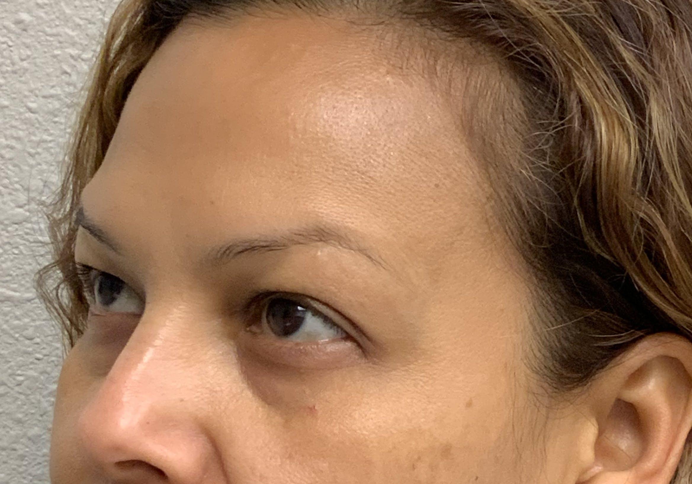 Botox Gallery - Patient 54692399 - Image 5