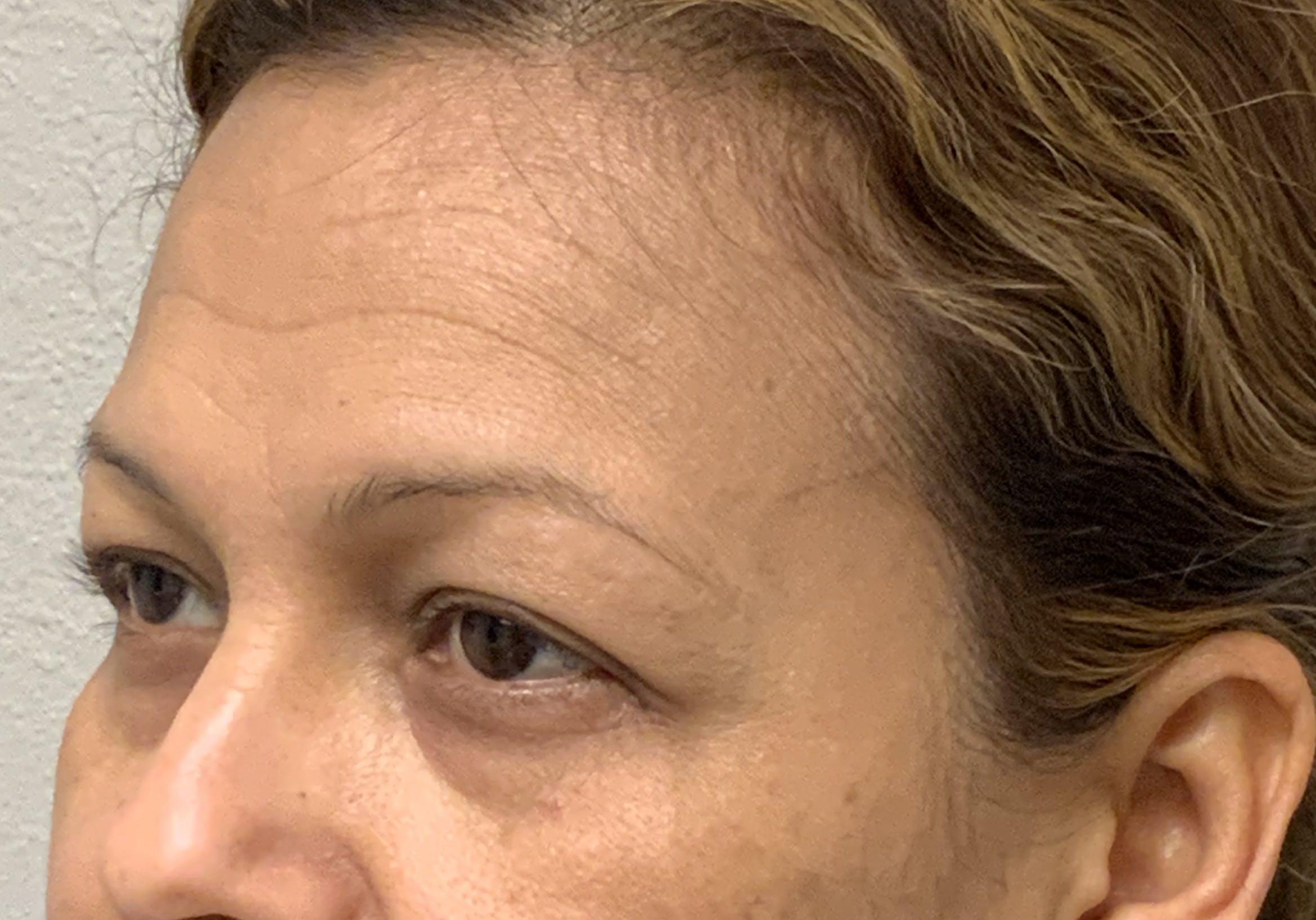 Botox Gallery - Patient 54692399 - Image 6