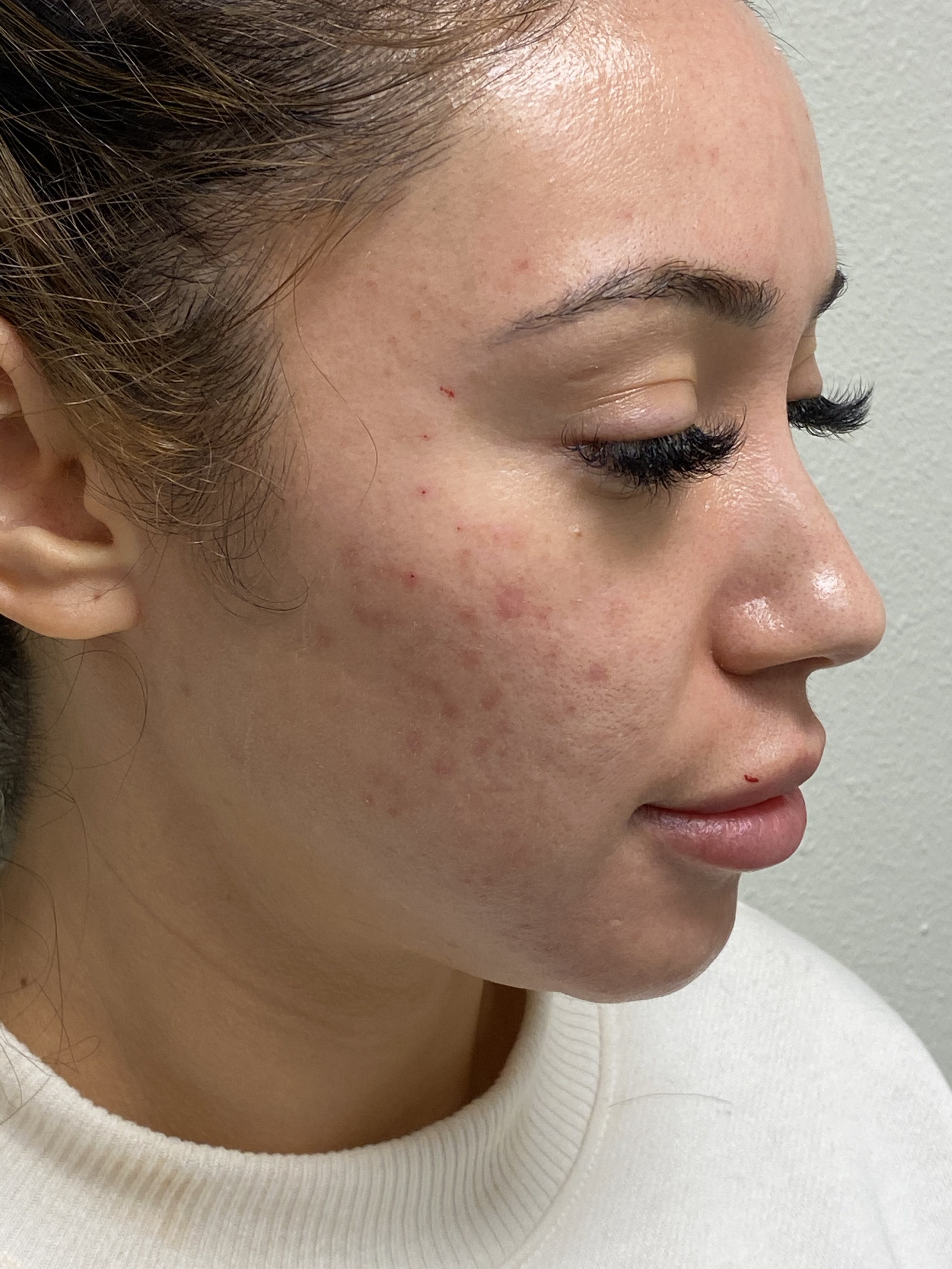 Hydrafacial Gallery - Patient 54692429 - Image 2