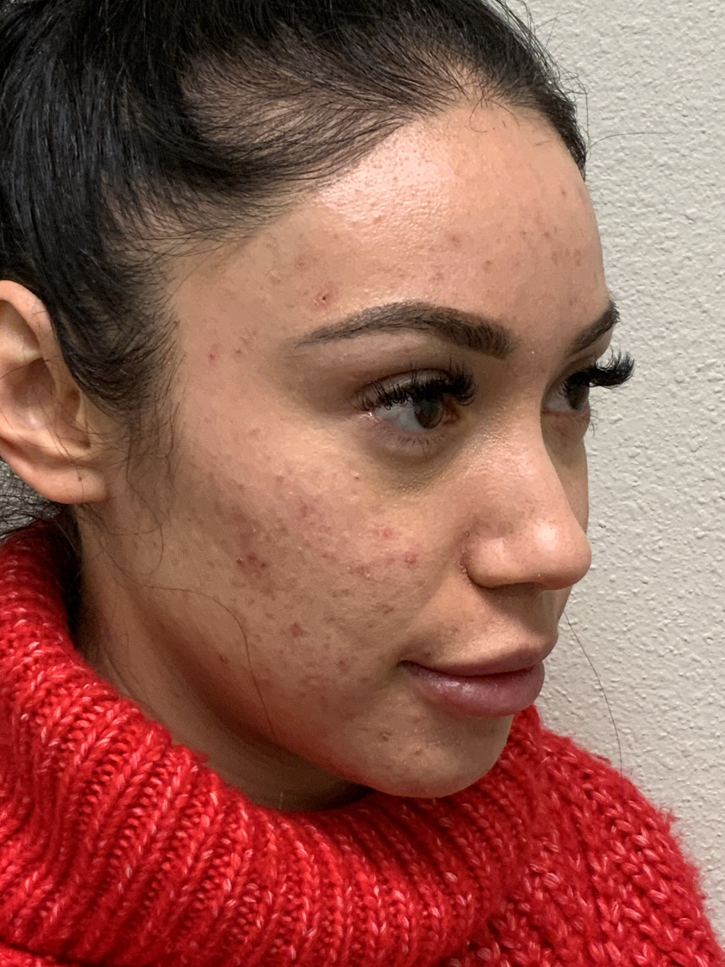 Hydrafacial Gallery - Patient 54692429 - Image 1