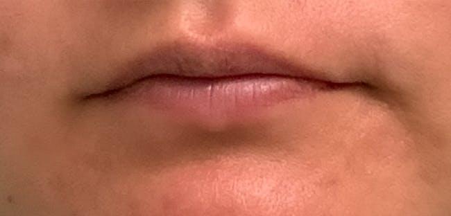 Lip Filler Gallery - Patient 54692445 - Image 1