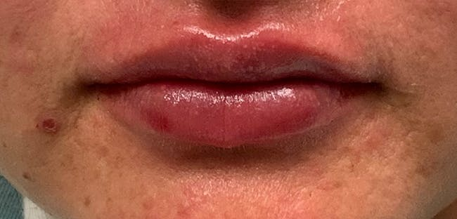 Lip Filler Gallery - Patient 54692445 - Image 2
