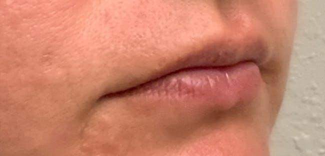 Lip Filler Gallery - Patient 54692445 - Image 3