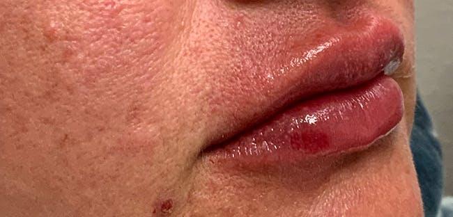 Lip Filler Gallery - Patient 54692445 - Image 4