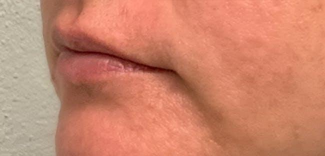 Lip Filler Gallery - Patient 54692445 - Image 5