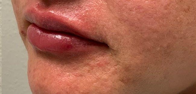 Lip Filler Gallery - Patient 54692445 - Image 6