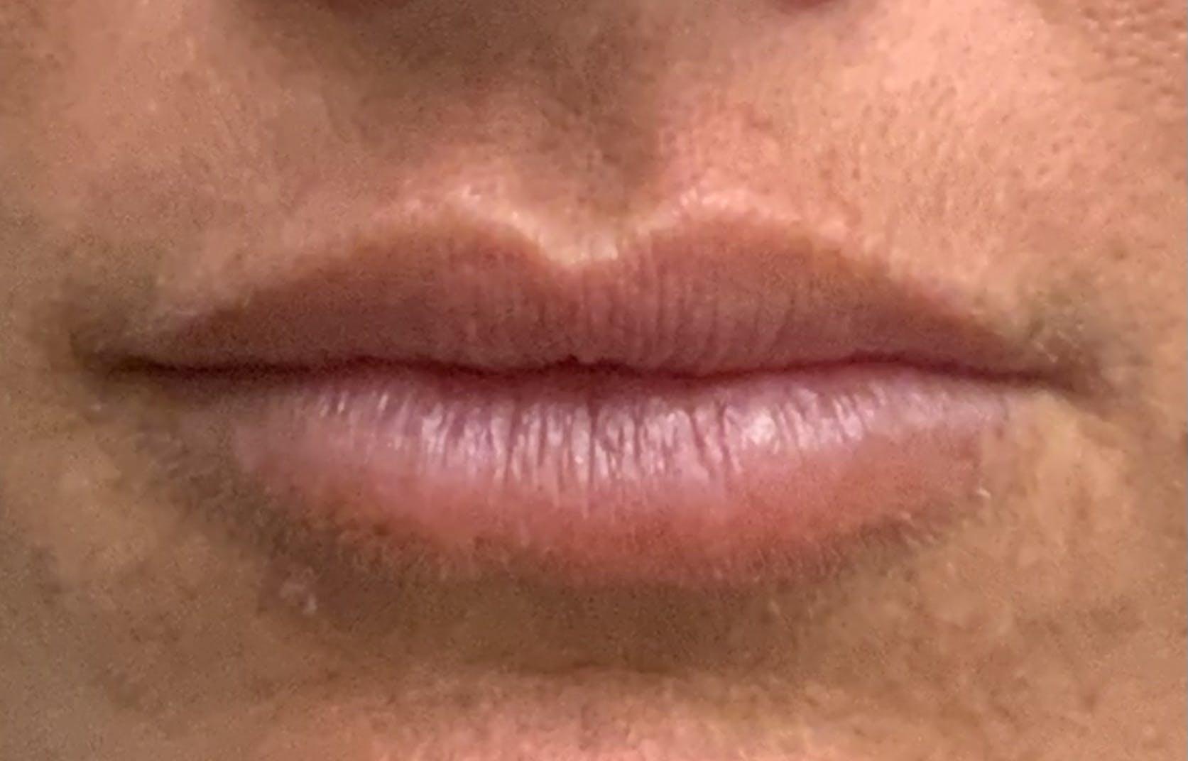 Lip Filler Gallery - Patient 54692505 - Image 1