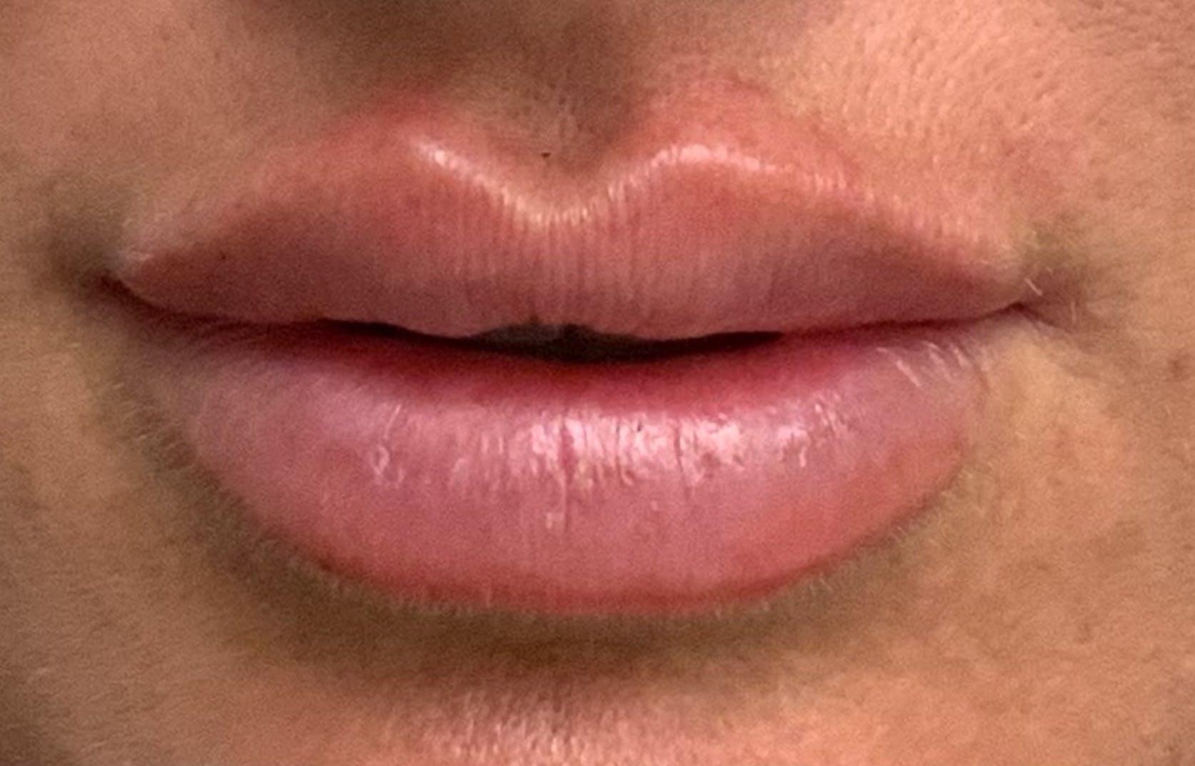 Lip Filler Gallery - Patient 54692505 - Image 2
