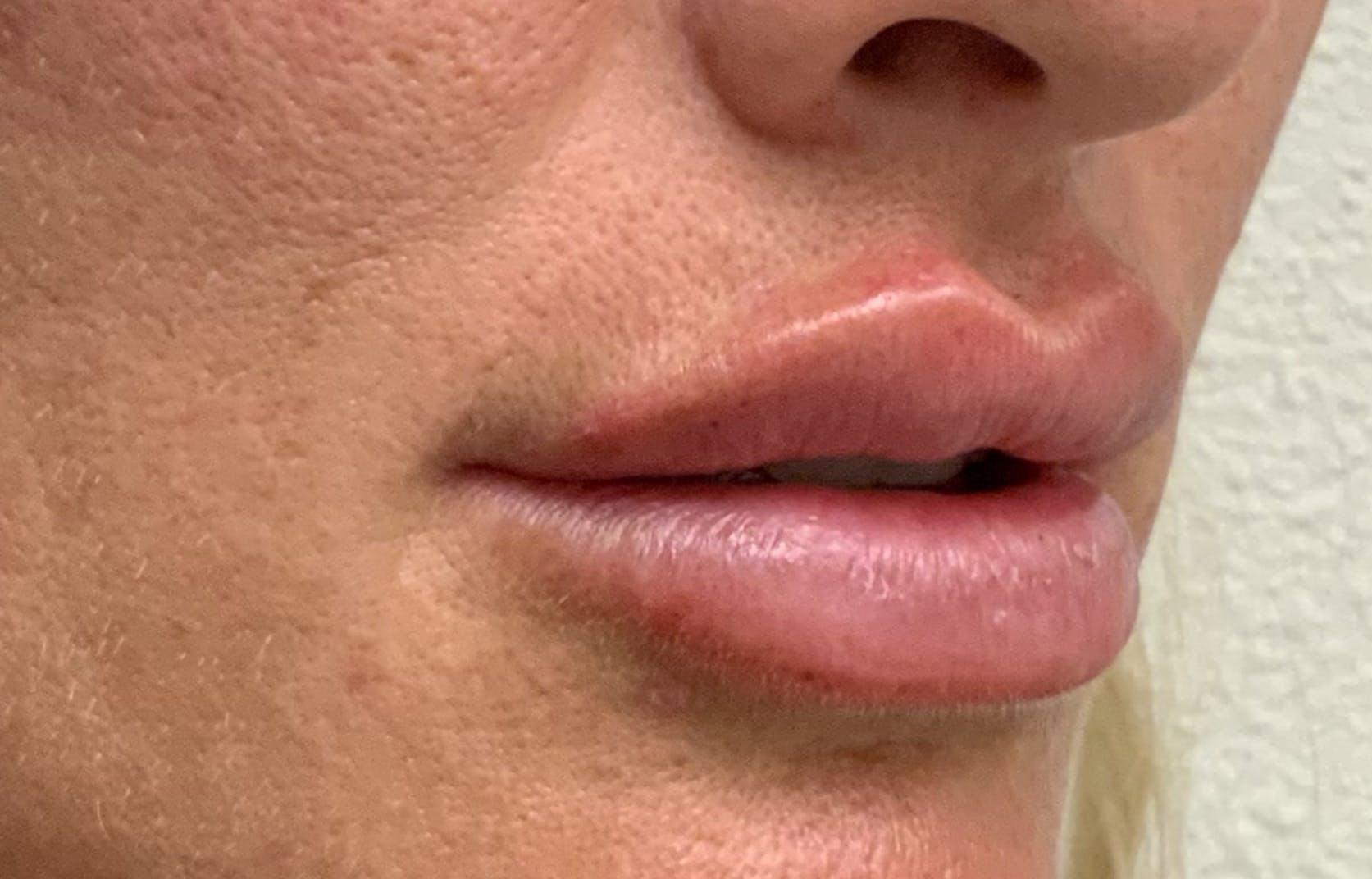 Lip Filler Gallery - Patient 54692505 - Image 3