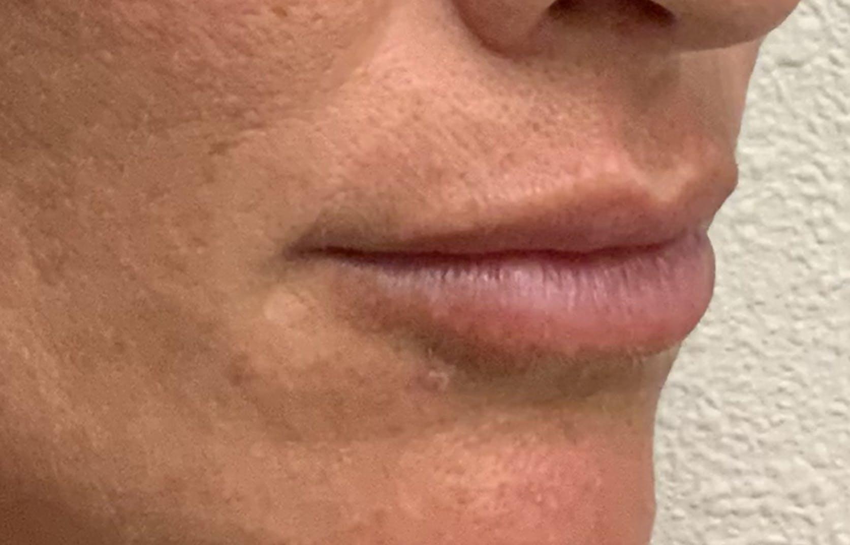 Lip Filler Gallery - Patient 54692505 - Image 4