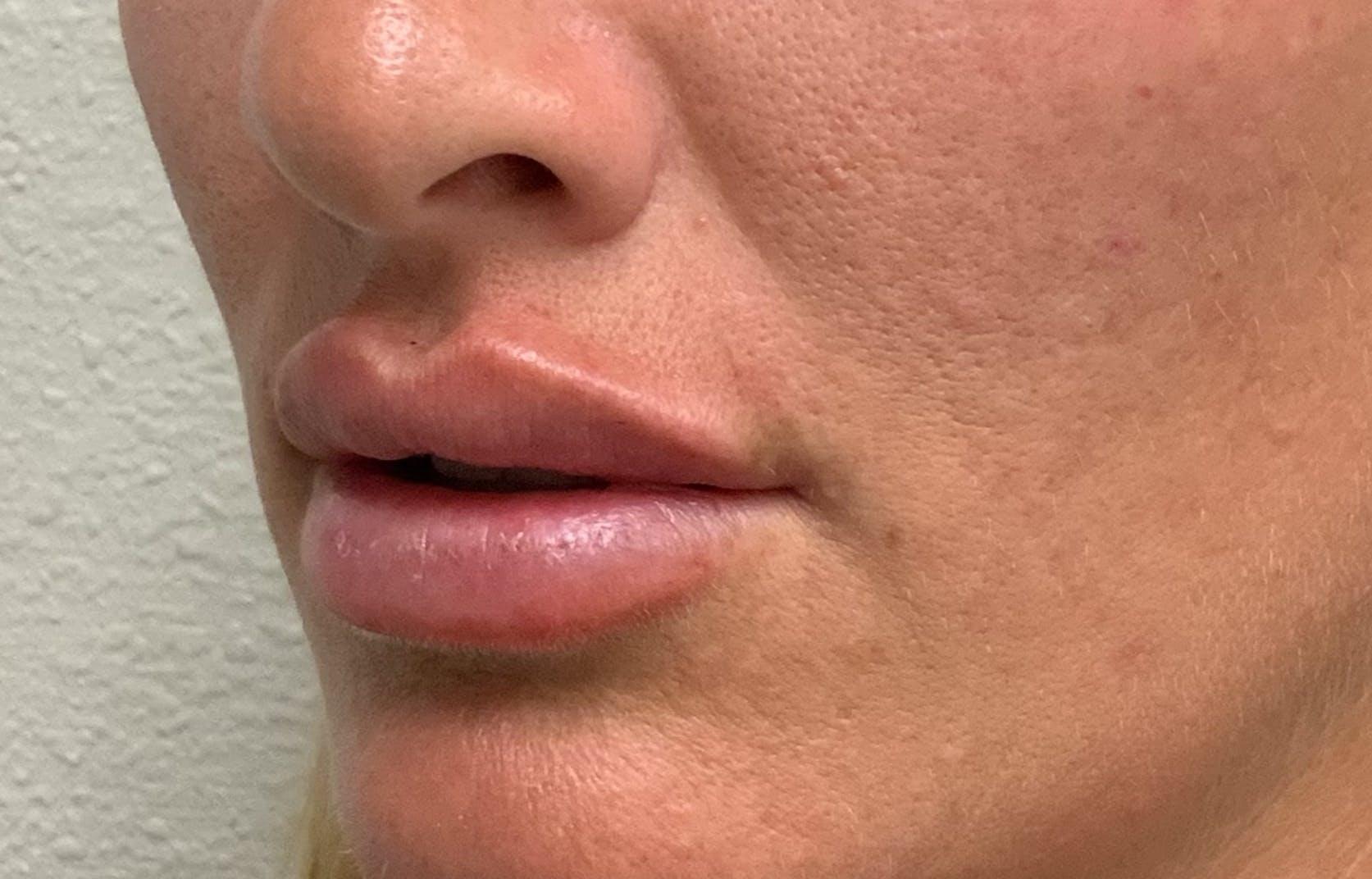Lip Filler Gallery - Patient 54692505 - Image 5