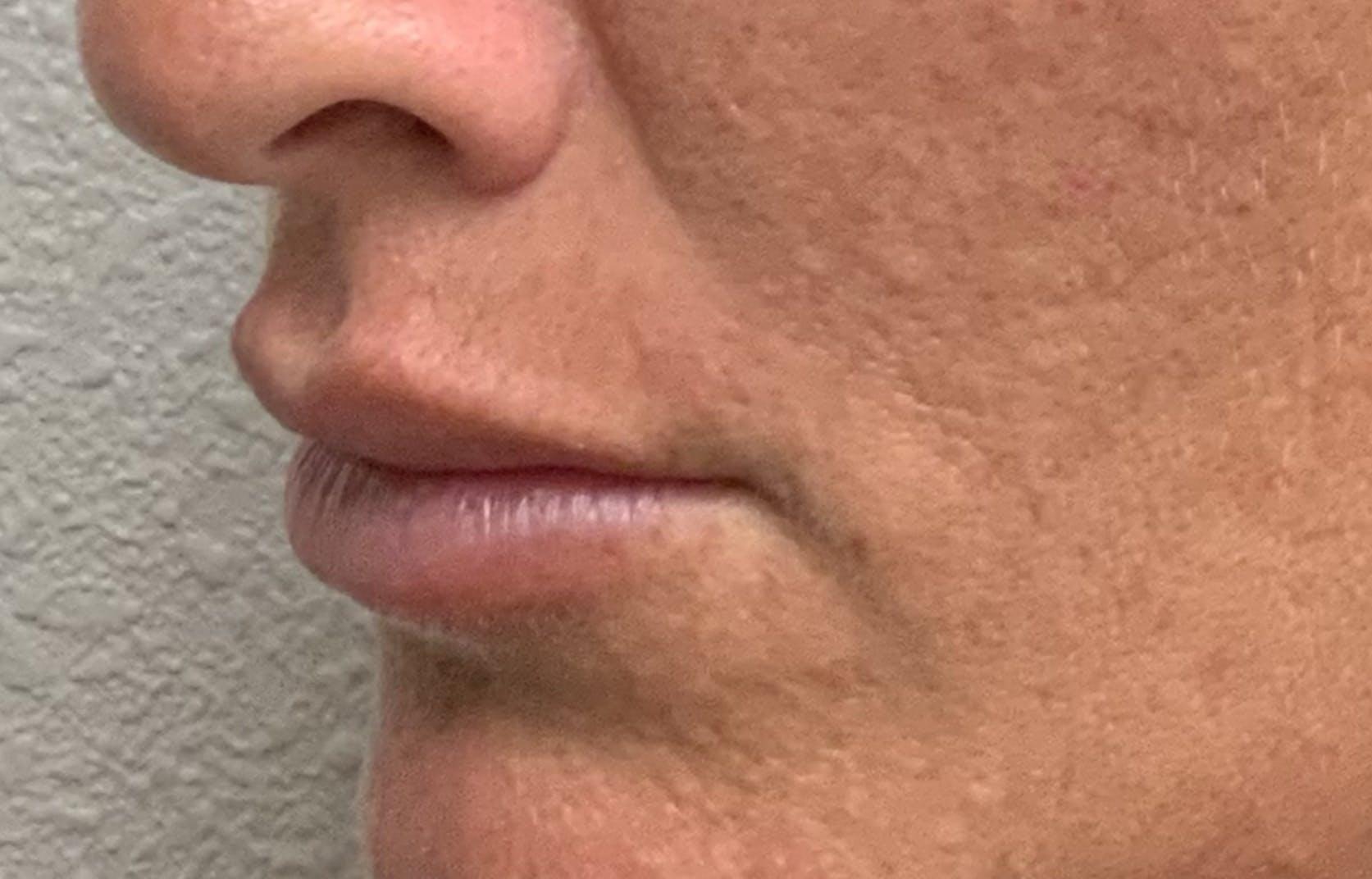 Lip Filler Gallery - Patient 54692505 - Image 6
