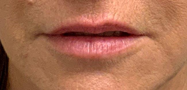 Lip Filler Gallery - Patient 54698022 - Image 1
