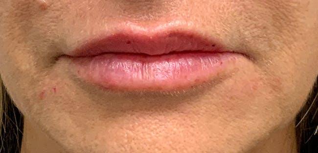 Lip Filler Gallery - Patient 54698022 - Image 2