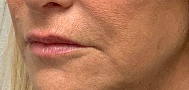 Lip Filler Gallery - Patient 54698022 - Image 3