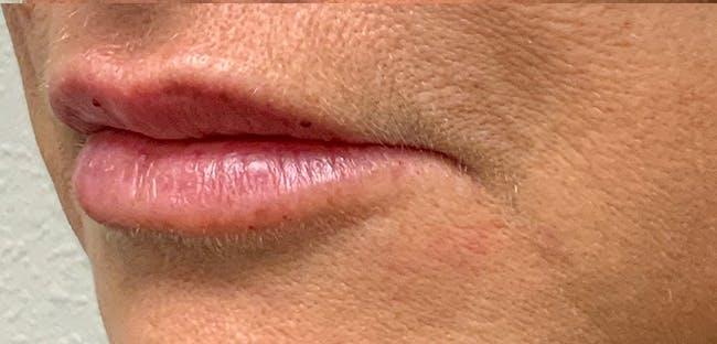 Lip Filler Gallery - Patient 54698022 - Image 4