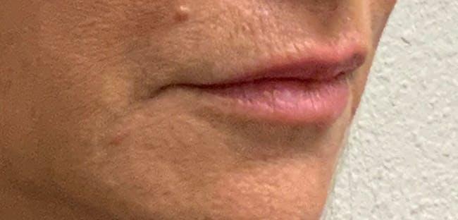 Lip Filler Gallery - Patient 54698022 - Image 5